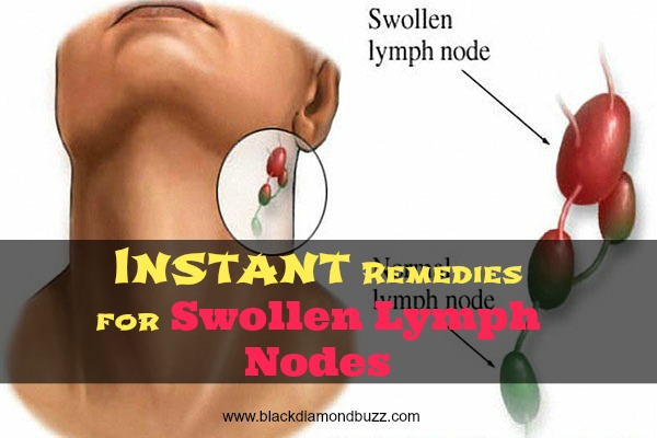 Lymph nodes how to get rid of them